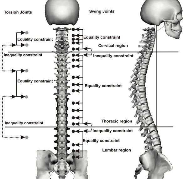 Convex Spine